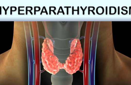 What You Need To Know About Hyperparathyroidism!