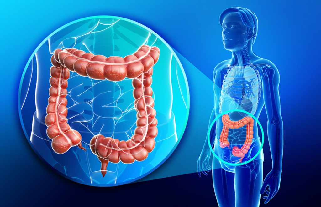 myths colon cancer