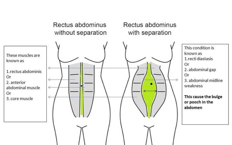 Rectus Diastasis