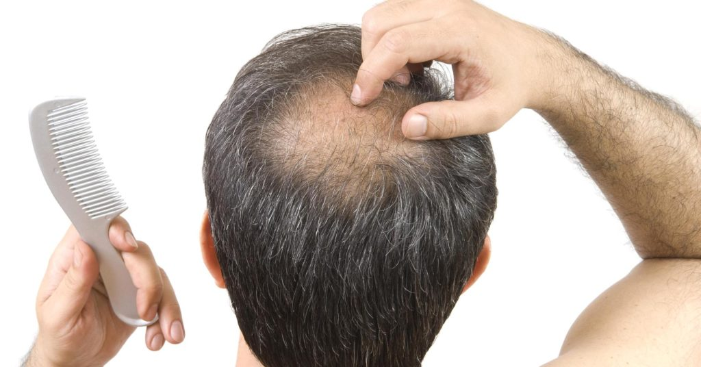 hair loss dr inder