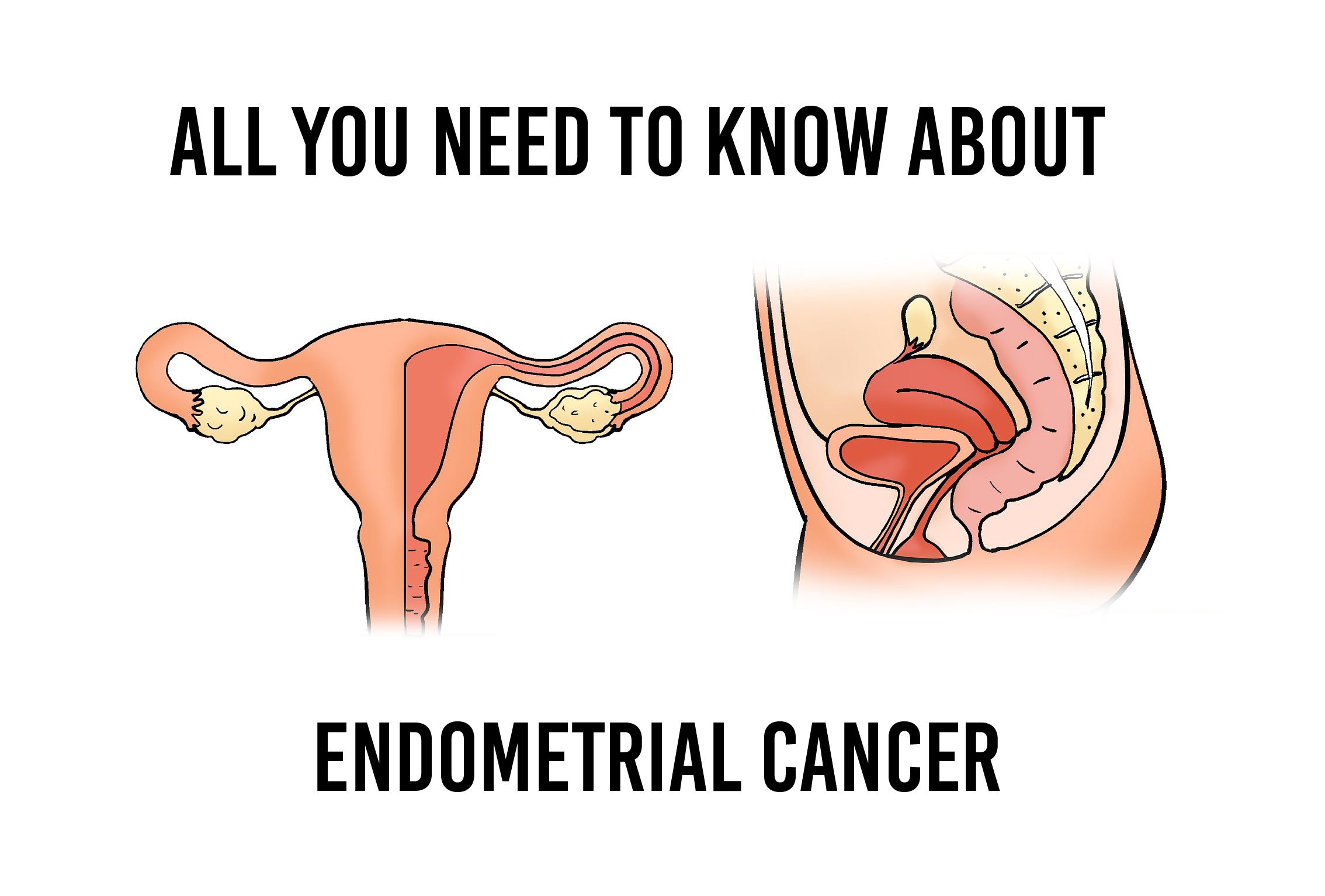 uterine cancer Endometrial cancer is a cancer that arises from the endometrium it is the result of  the abnormal growth of cells that have the.
